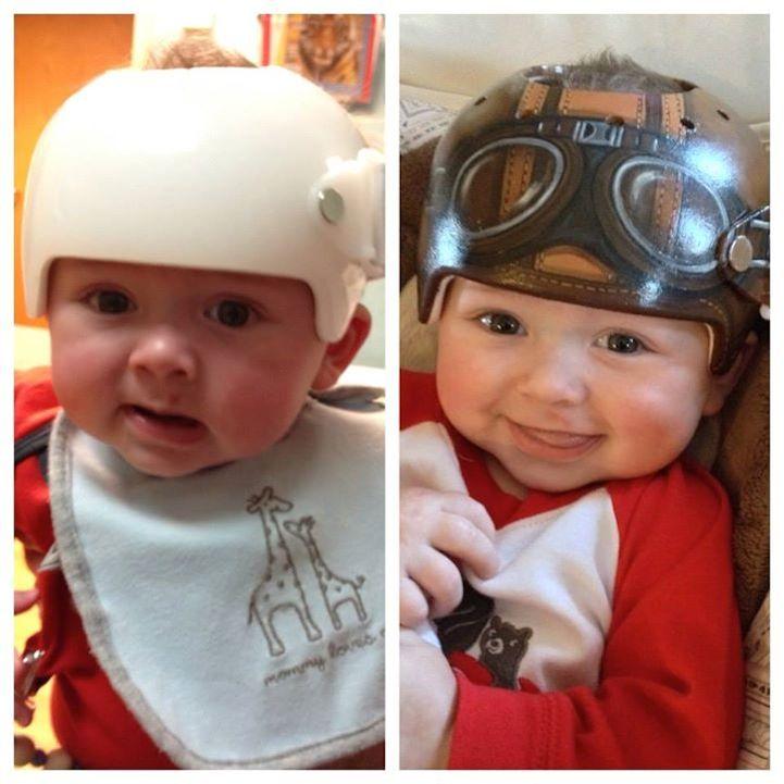 """为""""偏头综合症""""宝宝准备的可爱头盔"""